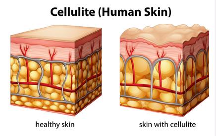 Darstellung Cellulite; Bindegewebsschwäche