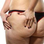 Po mit Cellulite