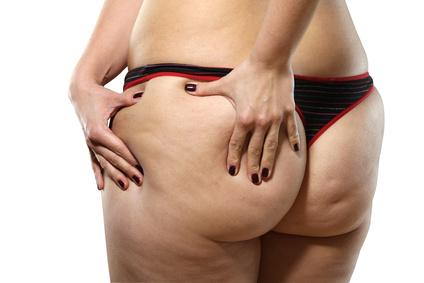 Anti-Cellulite-Produkte von Somatoline