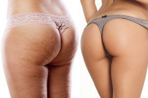 Cellulite bei schlanker Frau
