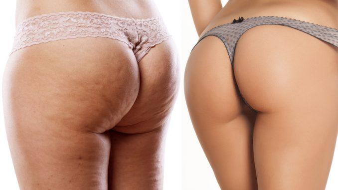 Cellulite am Po - Sport kann helfen