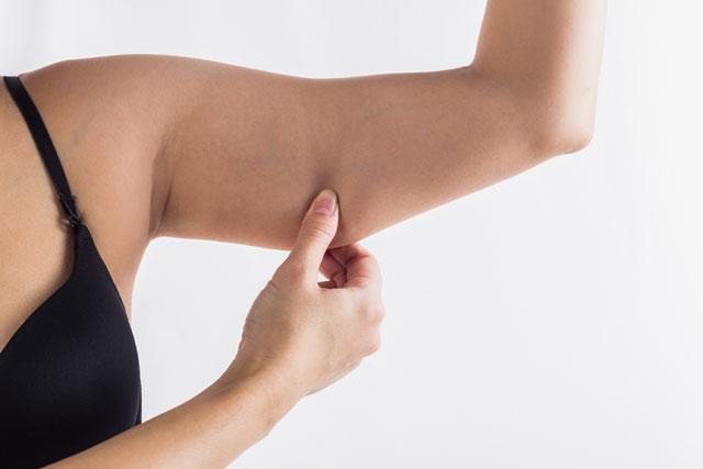 Cellulite am Arm