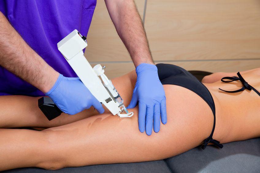 mesotherapie gegen cellulite