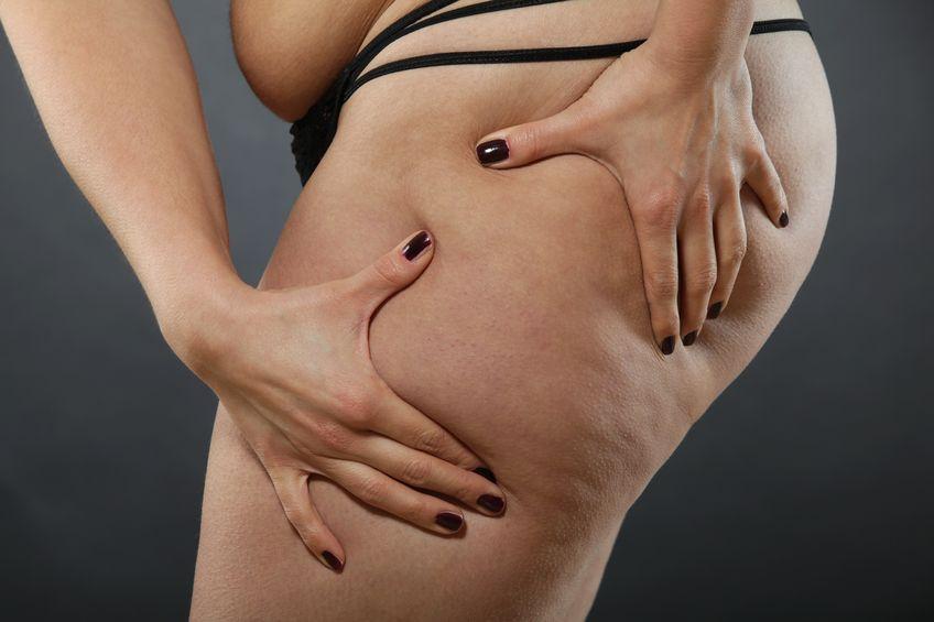 Mit Lymphdrainage gegen Cellulite